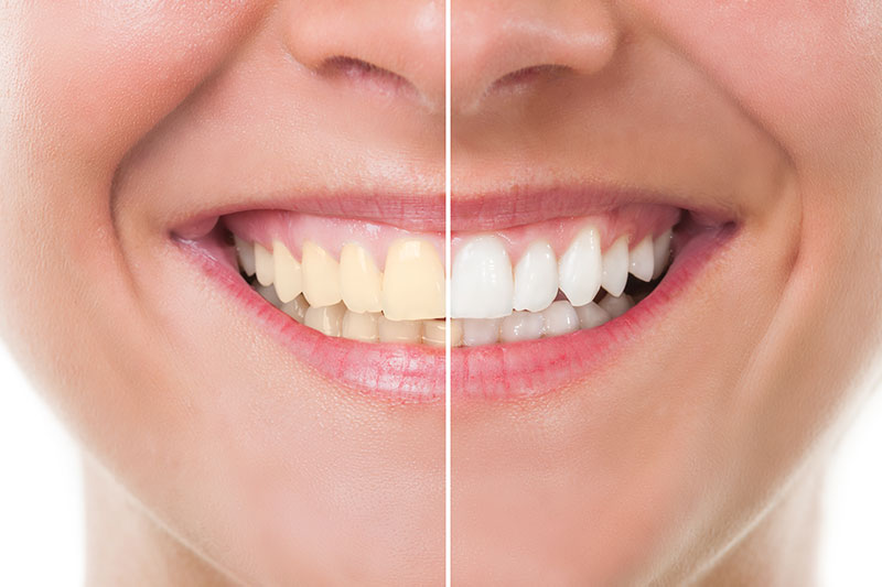 Teeth Whitening in Wexford